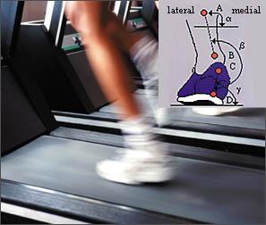 Laufbandbild-Analyse